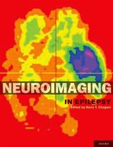 Neuroimaging in Epilepsy$