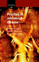 Pruritus in Advanced Disease